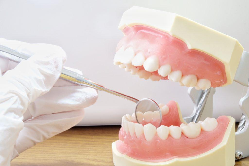矯正中の虫歯治療
