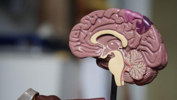 脳動脈瘤クリッピング術
